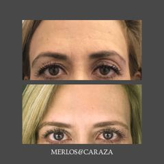 Toxina Botulínica - Merlos & Caraza