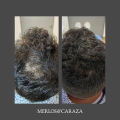 Alopecia - Merlos & Caraza