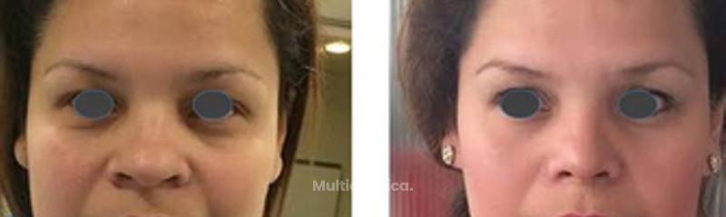Rinofast Hidalgo Cirugia De Nariz