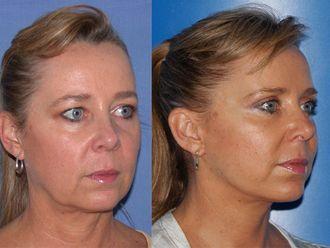 Cirugía de papada-479916