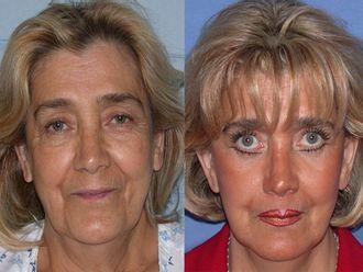 Tratamientos faciales - 479917