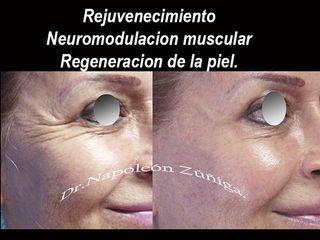 Rejuvenecimiento. de su cara sin cirugia