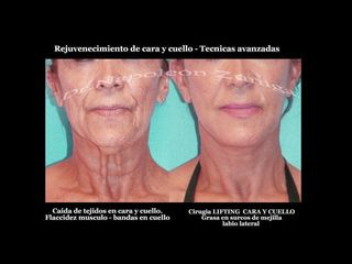 Lifting de cara y cuello