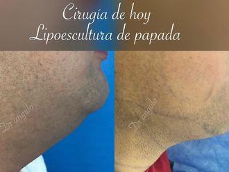 Cirugía de papada-633836