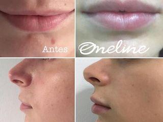 Antes y despues de Volumen en los labios con Ácido Hialurónico