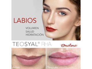 foto 2 aumento de labios