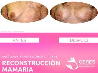 Reconstrucción mamaria-591407