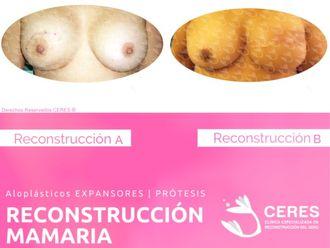 Reconstrucción mamaria-591408