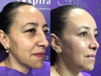 Rejuvenecimiento facial-630650