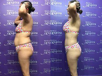 Abdominoplastia-630653