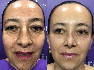 Cirugía facial-630858