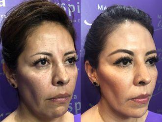 Cirugía facial-630862
