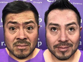 Rejuvenecimiento facial-631049