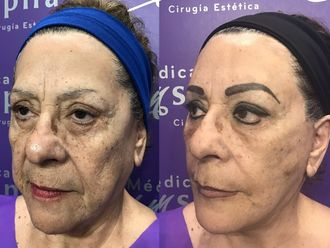 Cirugía facial - 631054