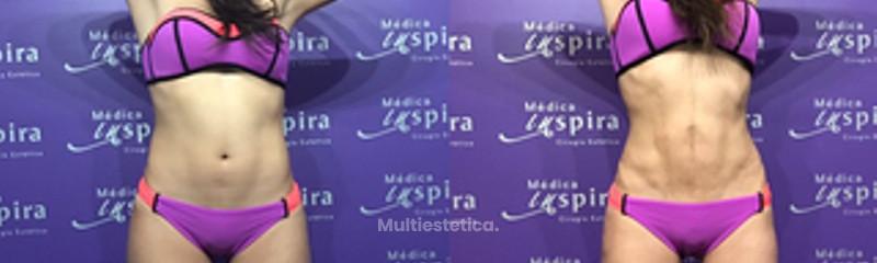 Lipoescultura Vasser marcaje abdominal
