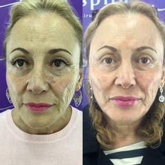 Inspira Refresh Facial