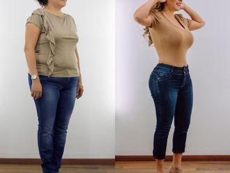 Mommy makeover-662665