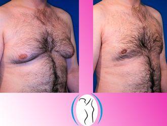 Cirugía ginecomastia - 623123