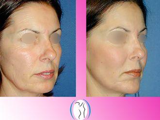 Cirugía facial-623131