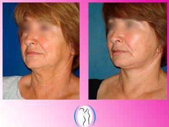 Cirugía facial-623132