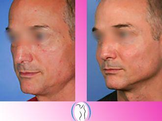 Cirugía facial-623133