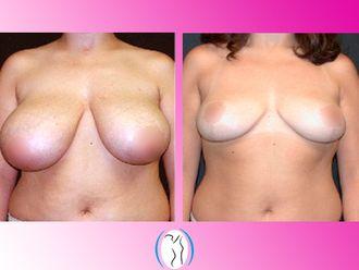 Reducción de mamas - 623156