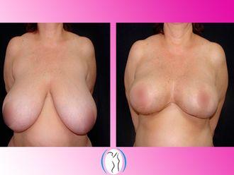 Reducción de mamas - 623158