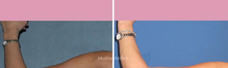 Liposucción de brazos