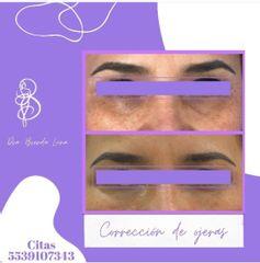Corrección de ojeras con  relleno - Dra. Brenda Luna