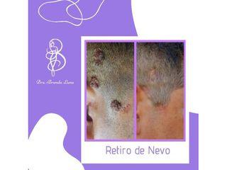 Eliminación de verrugas - Dra. Brenda Luna