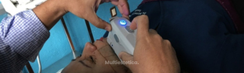 Lifting HIFU - Ultrasonido de Alta Intensidad