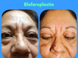 Blefaroplastia-592405