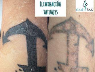 Eliminación de tatuajes-615087