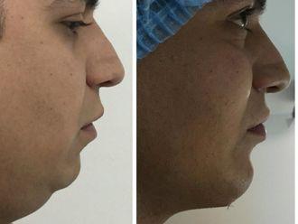 Cirugía de papada-621395