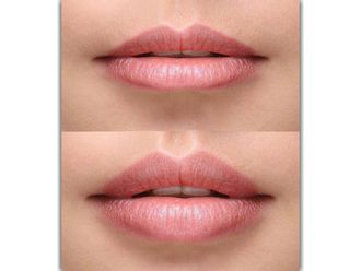 Aumento de labios-621408