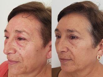 Blefaroplastia-626524