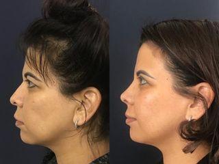 Rinoplastia + mentoplastia + Blefaroplastia