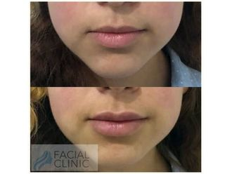 Aumento de labios-641732