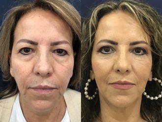 Tratamientos faciales-660403
