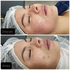 AAPE facial - Dr. Irvin Hans Garduño