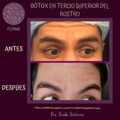 Bótox - Plenius