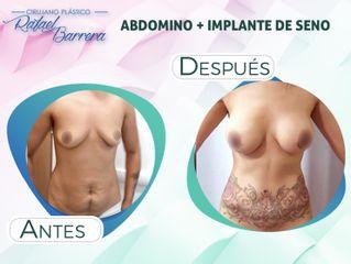 Lipoescultura - Dr. Rafael Barrera Vazquez