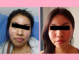 Tratamiento antiacné - 640052