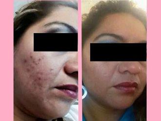 Tratamiento antiacné - 640053