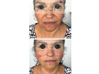 Rejuvenecimiento facial-626479