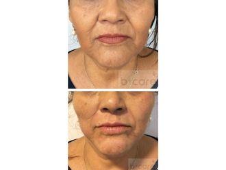 Rejuvenecimiento facial-626481