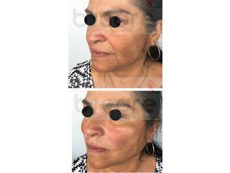 Rejuvenecimiento facial-626482