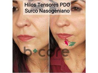 Hilos tensores PDO Surco Nasogeniano