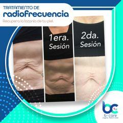 Radiofrecuencia - B+ Care