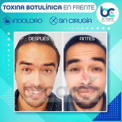 Bótox - B+ Care